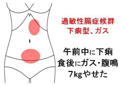 症例24】下痢やガス症状で退職も...